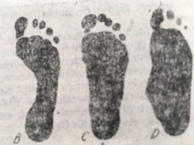 picior plat3